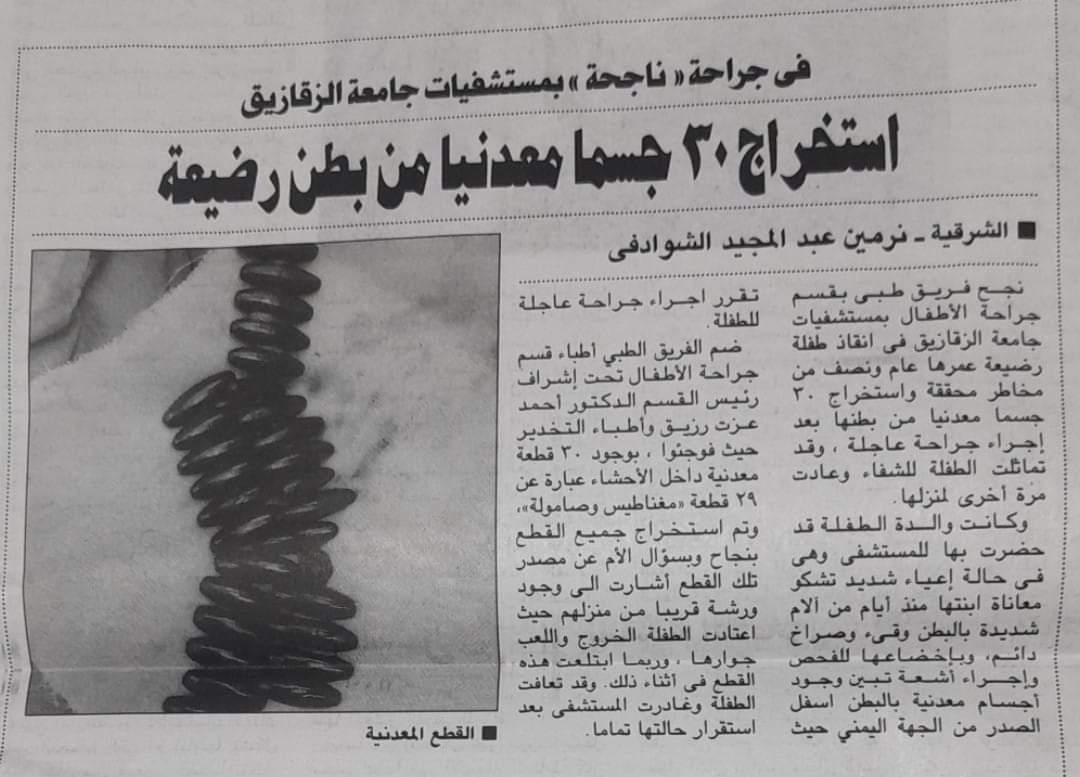فى جراحة « ناجحة » بمستشفيات جامعة الزقازيق.. استخراج 30 جسما معدنيا من بطن رضيعة!
